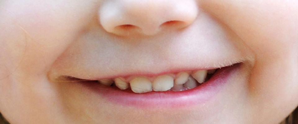 Tu sonrisa es nuestra sonrisa